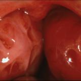 big-freakin-tonsils1