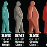 obesita_5_87471